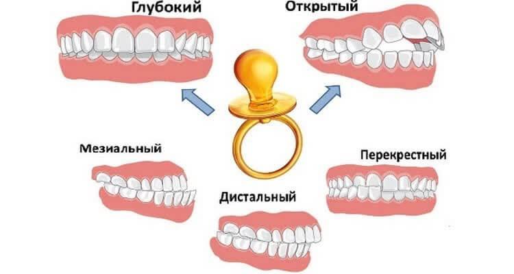kak-otuchit-rebenka-ot-pustishki-22