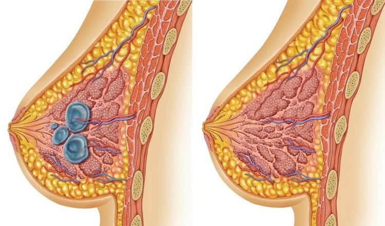 Диффузная мастопатия и здоровая грудь