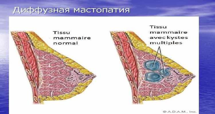Диффузная мастопатия вид