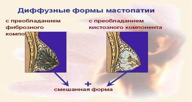 Диффузные формы мастопатии
