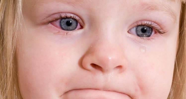 Ребенок с закапанными витаминами глазами
